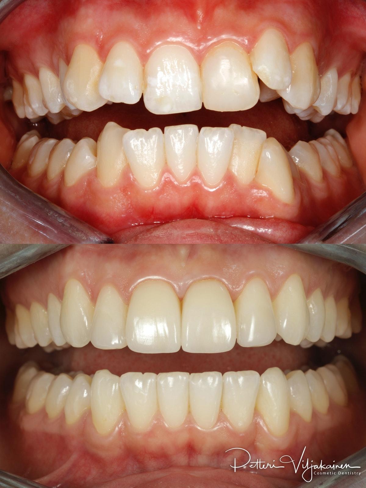 Esteettinen hammashoito ennen jälkeen. Keraamiset kuoret eli hammaslaminaatit keskimmäisissä yläetuhampaissa.