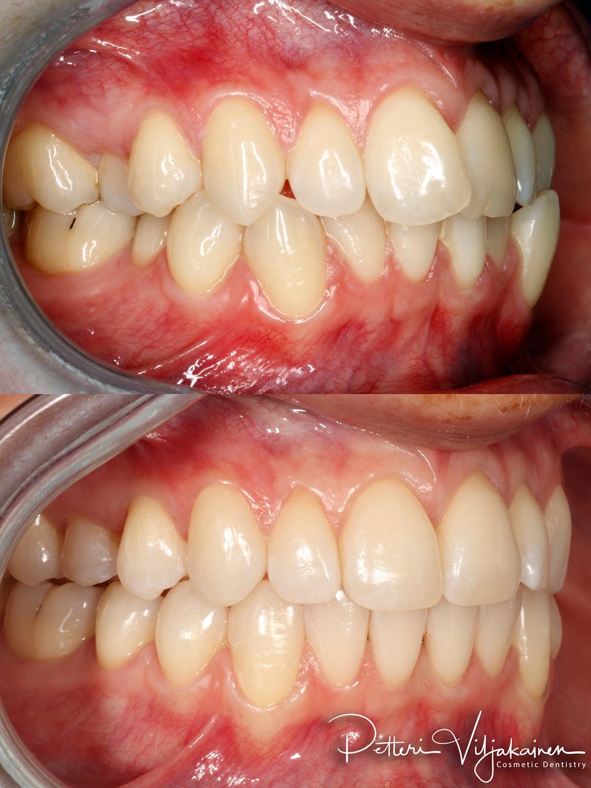 invisalign oikomishoito hampaat ennen jälkeen