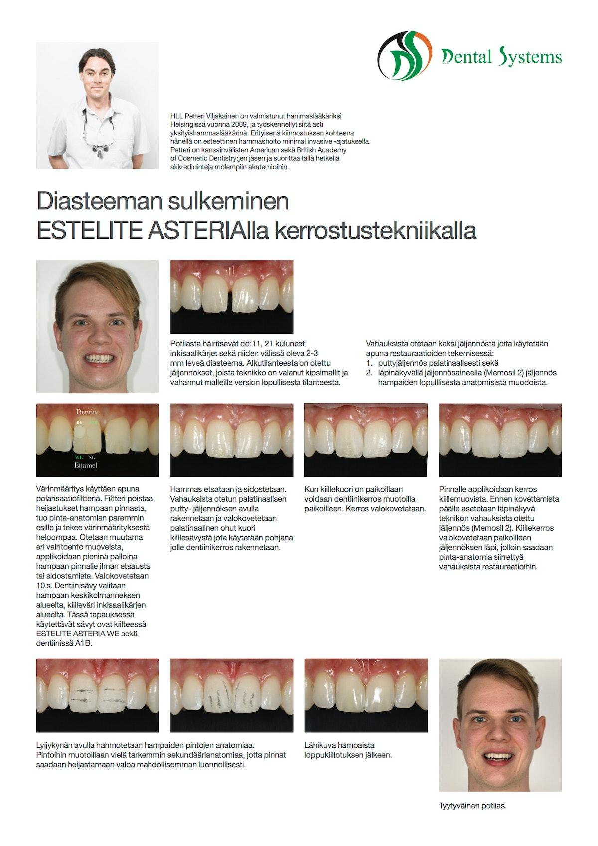 Diasteeman sulkeminen esteettisillä kerrostusmuovitäytteillä.