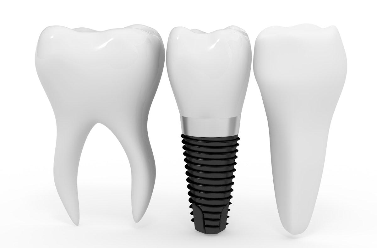 Puuttuvan hampaan korvaaminen keinojuurella eli implantilla