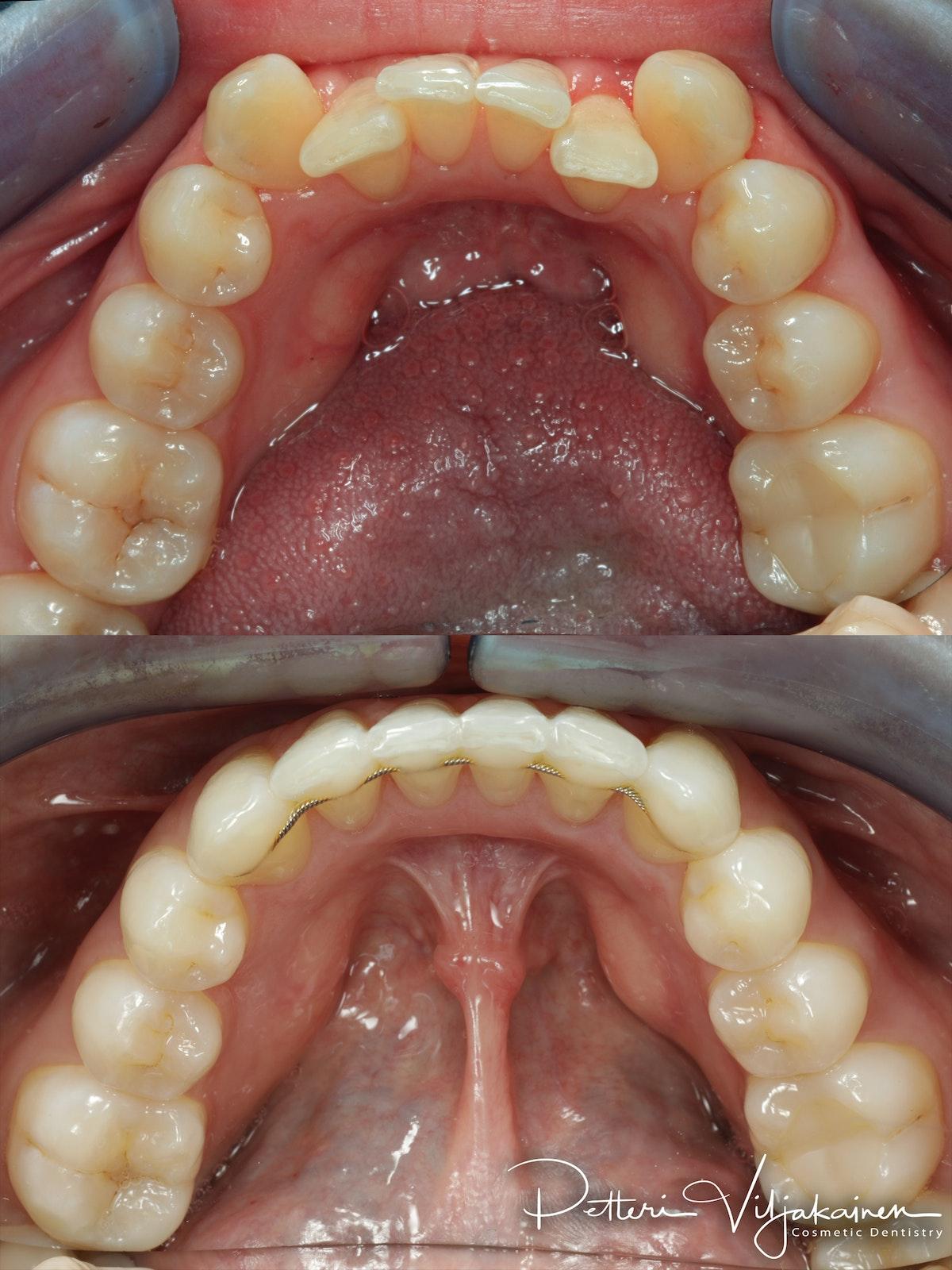 invisalign oikomishoito hampaat ennen jälkeen retentiolanka