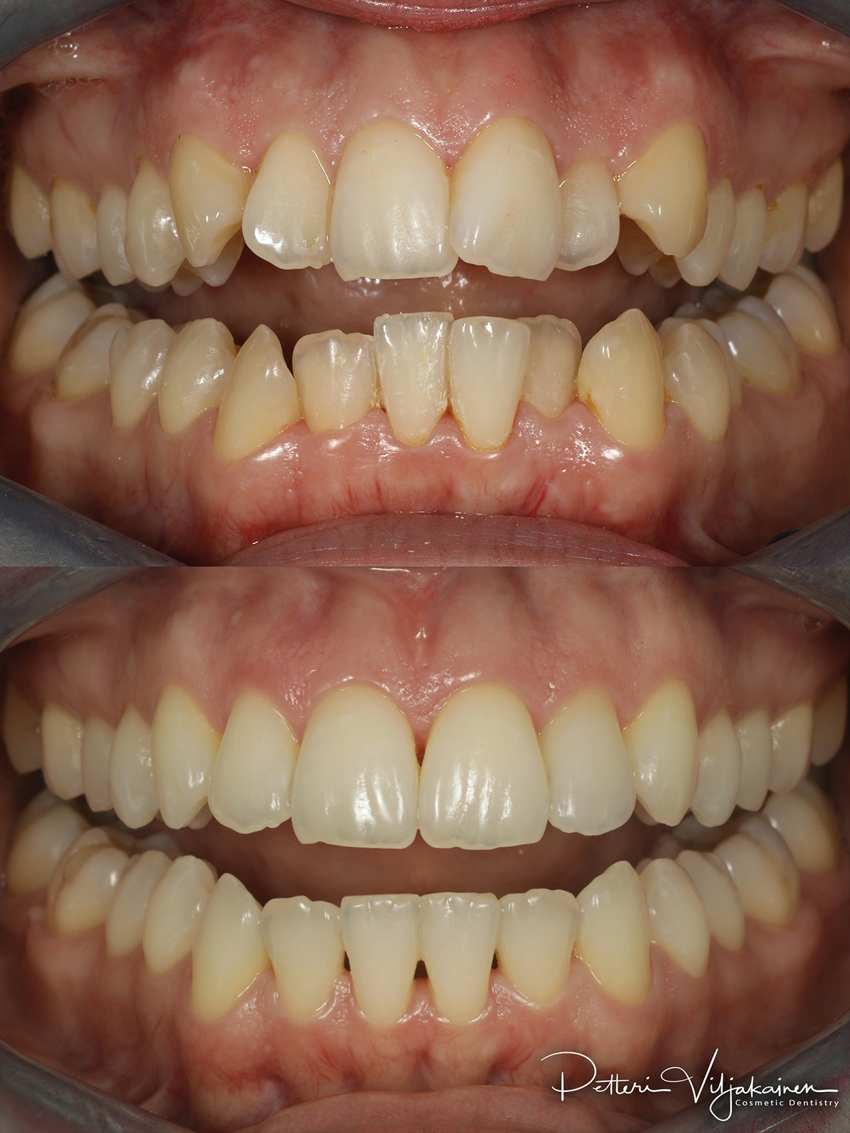 invisalign oikomishoito hampaat ennen jälkeen keraaminen kuori AACD accrediation JCD