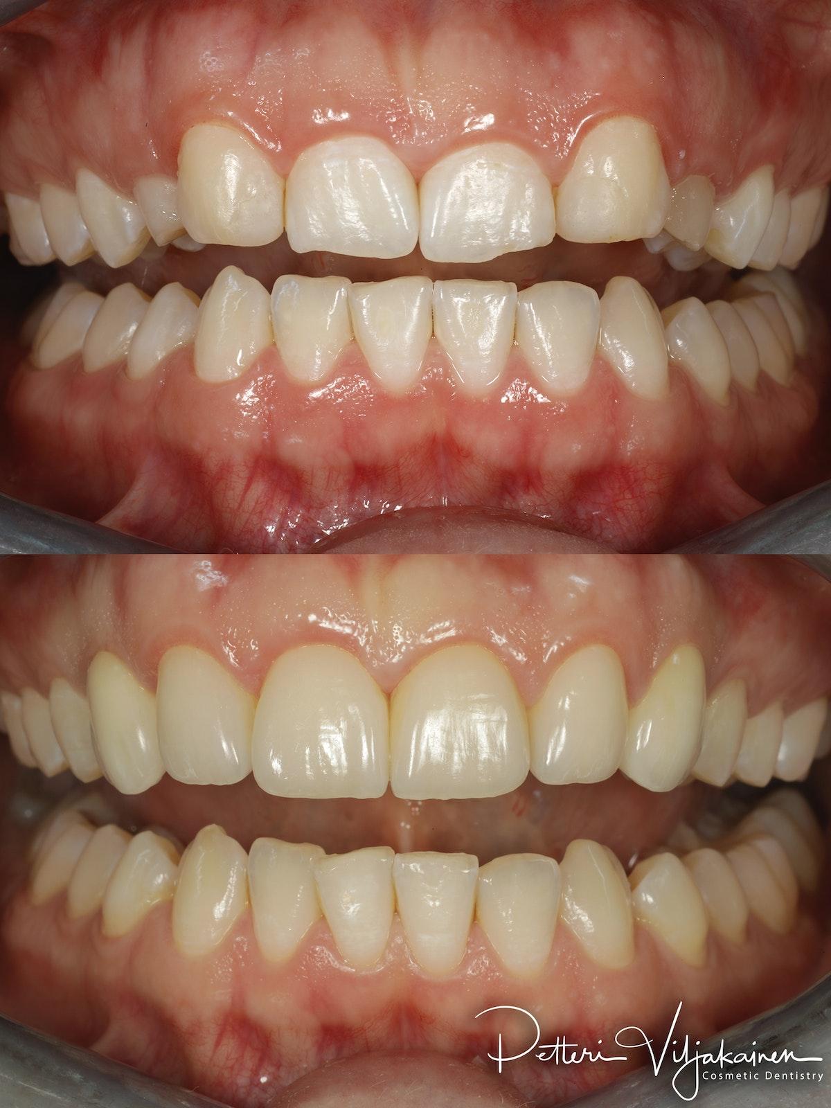 Esteettinen hammashoito ennen jälkeen. Keraamiset kuoret eli hammaslaminaatit neljässä yläetuhampaassa. Kulmahampaat korvattu implanttikruunuilla.