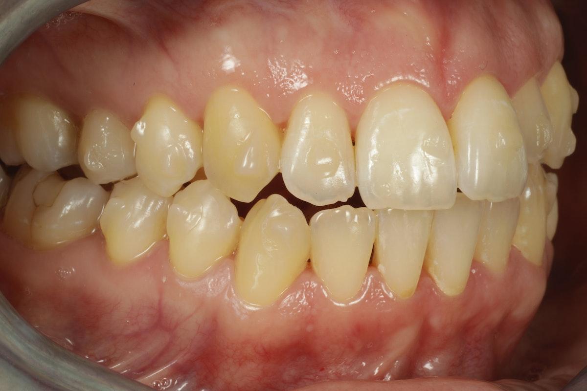 invisalign oikomishoito kiinnikkeet hampaissa
