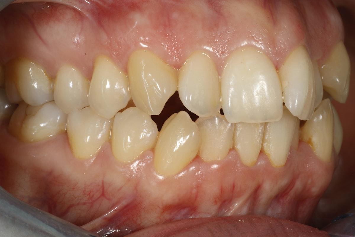 invisalign oikomishoito hampaat ennen kiinnikkeitä