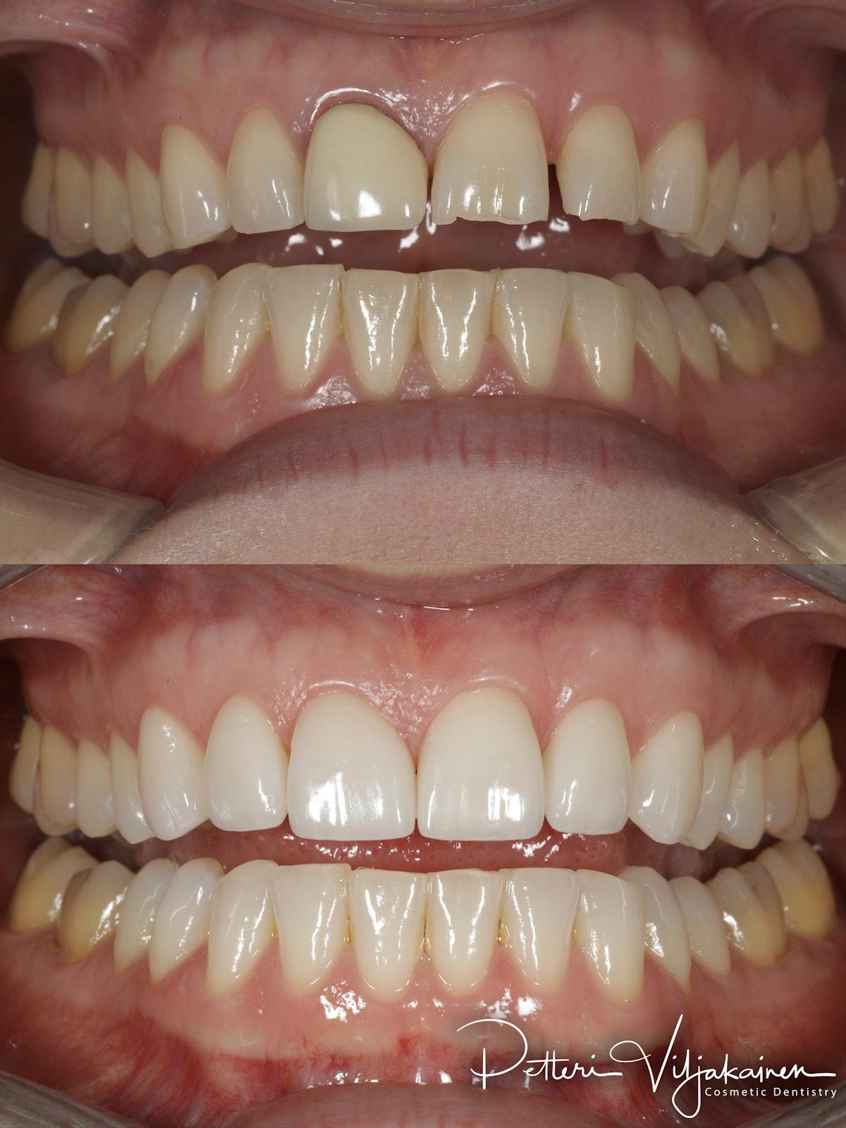 Esteettinen hammashoito ennen jälkeen. Keraamiset kuoret eli hammaslaminaatit kuudessa yläetuhampaassa.