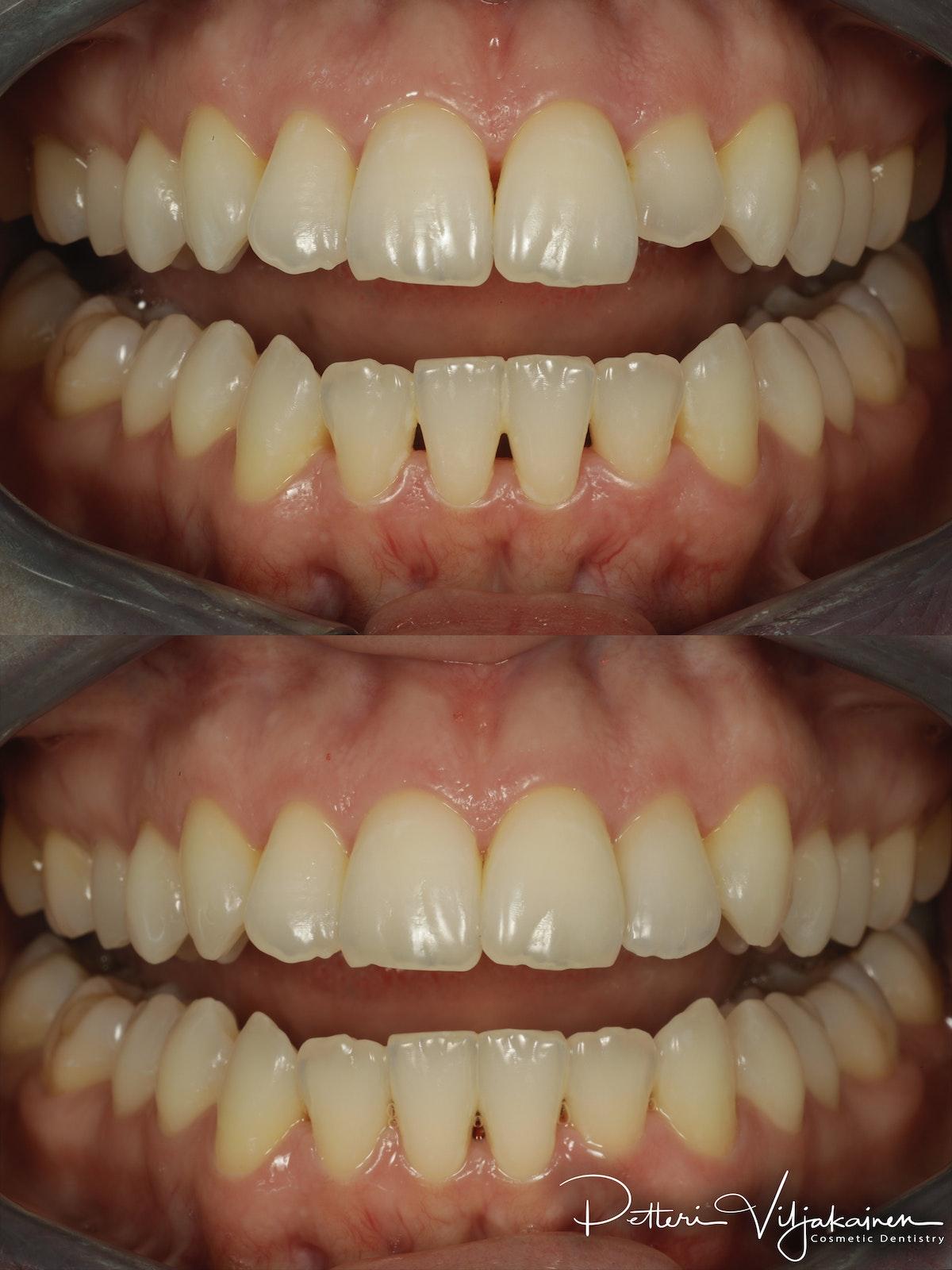 Esteettinen hammashoito ennen jälkeen. Yksittäinen keraaminen kuori eli hammaslaminaatti reunimmaisessa yläetuhampaassa.