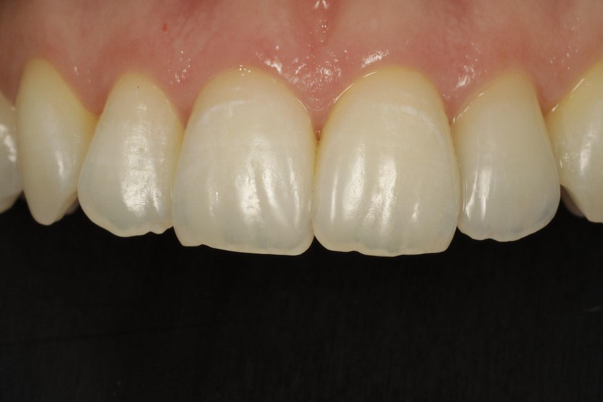 Valmis kuori eli hammaslaminaatti sementoituna.