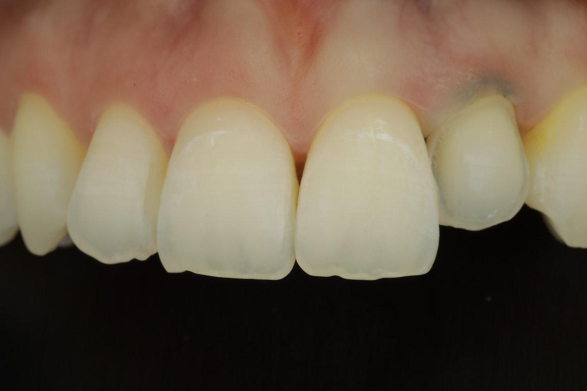 Hampaan hiontata laminaattia varten. näkymä polarisaatiofiltterillä kuvattuna.