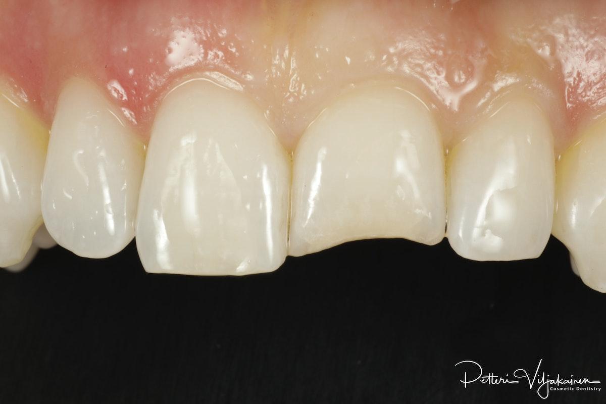 Hampaan hionta esteettistä kerrostusmuovitäytettä varten