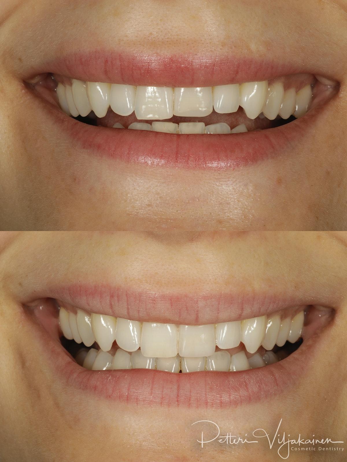 Esteettinen hammashoito lopputilanne. Valmis kerrostustekniikalla valmistettu yhdistelmämuovitäyte paikoillaan.