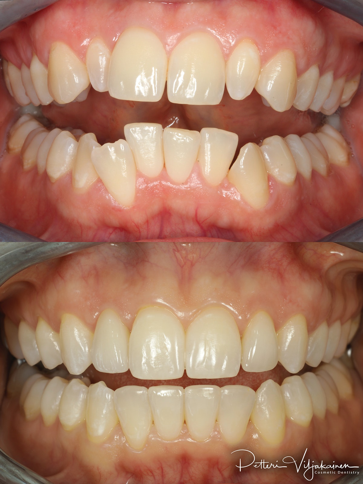 invisalign oikomishoito hampaat ennen jälkeen keraamiset kuoret