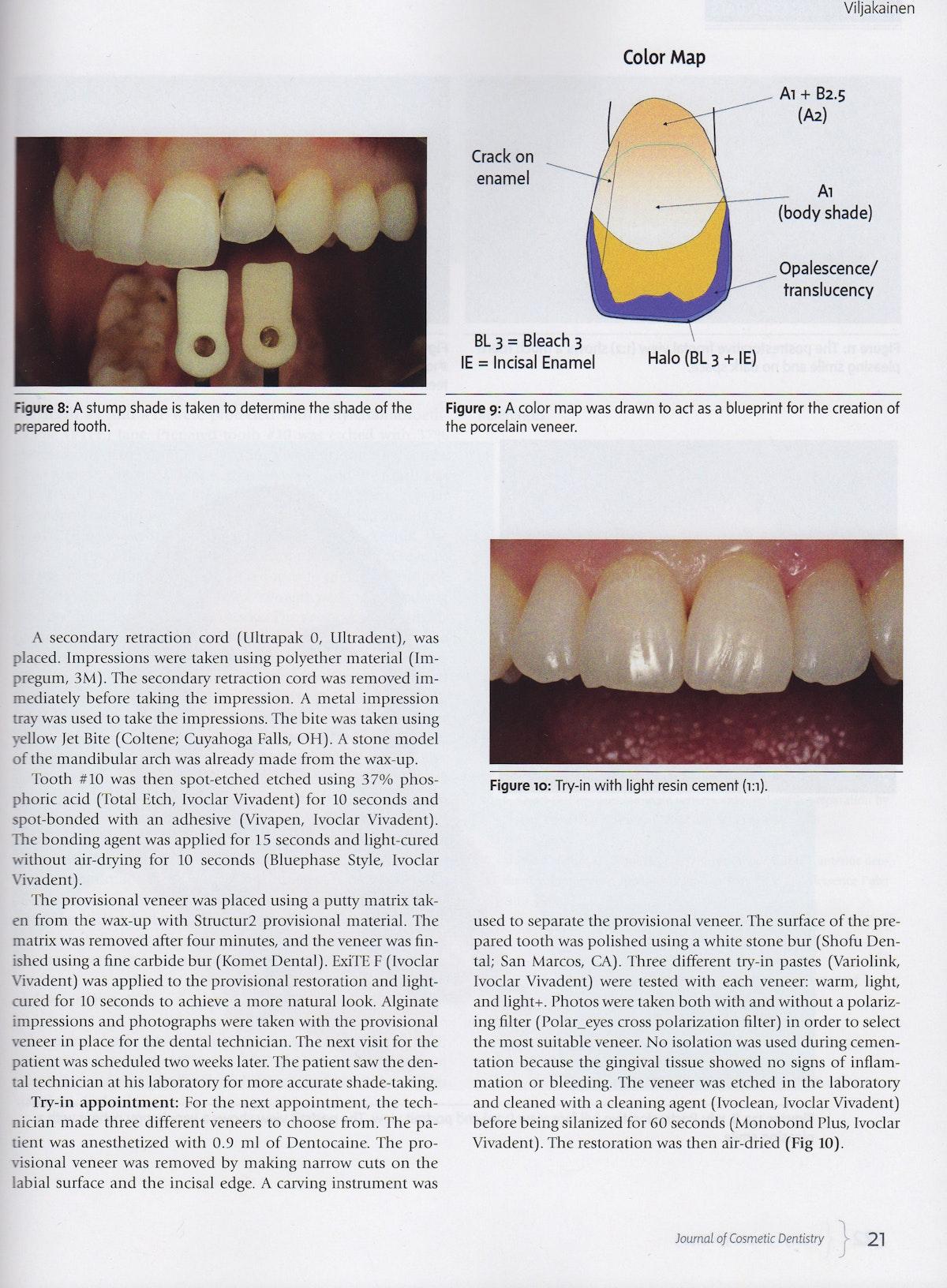Journal of Cosmetic Dentisry article. dr. Petteri Viljakainen. Keraaminen kuori. Ceramic veneer. Invisalign.