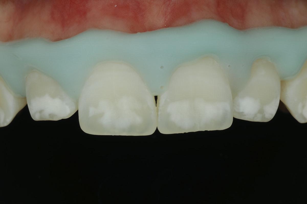 Valkoiset Läiskät Hampaissa