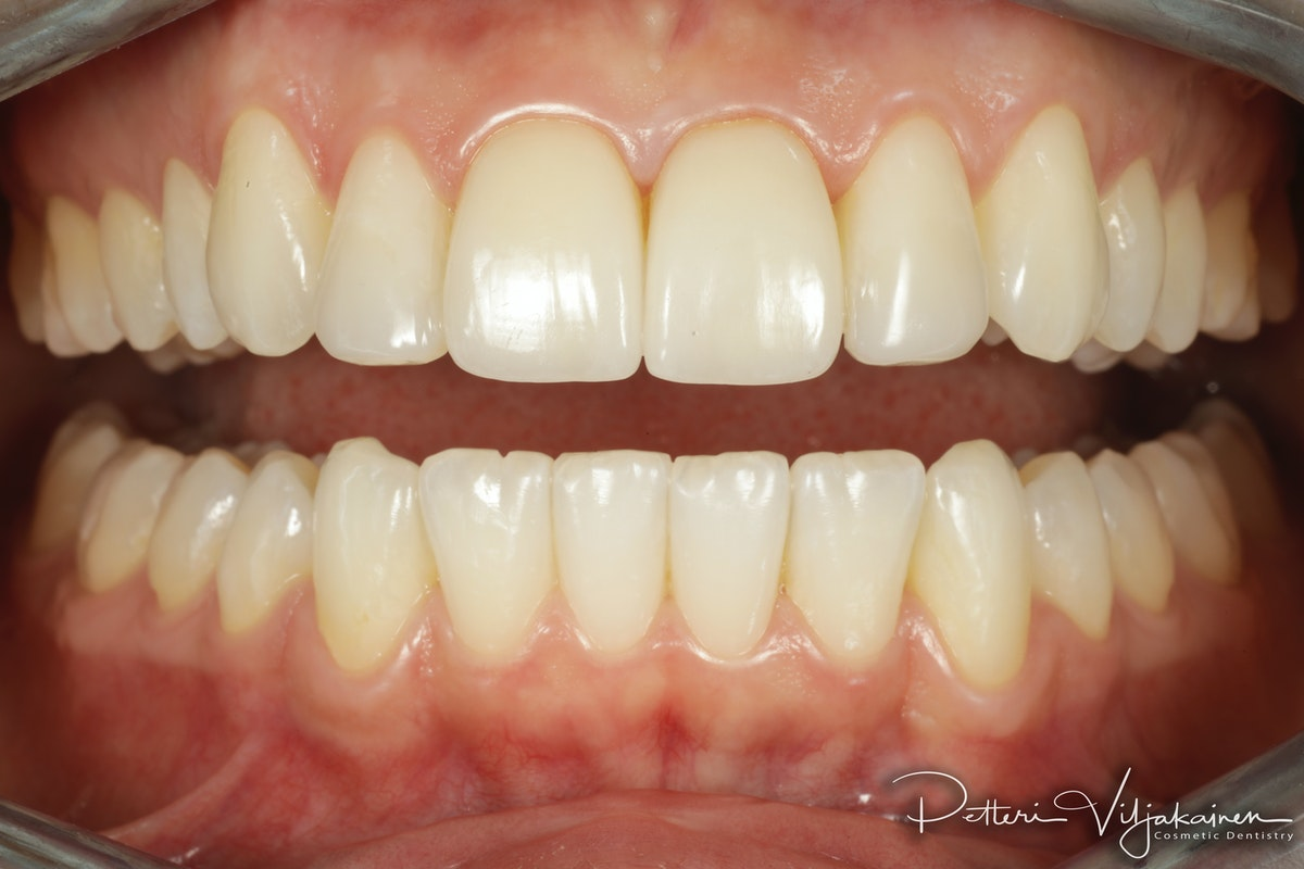 Invisalign oikomishoito jälkeen. Keraamiset kuoret eli hammaslaminaatit keskimmäisissä etuhampaissa.