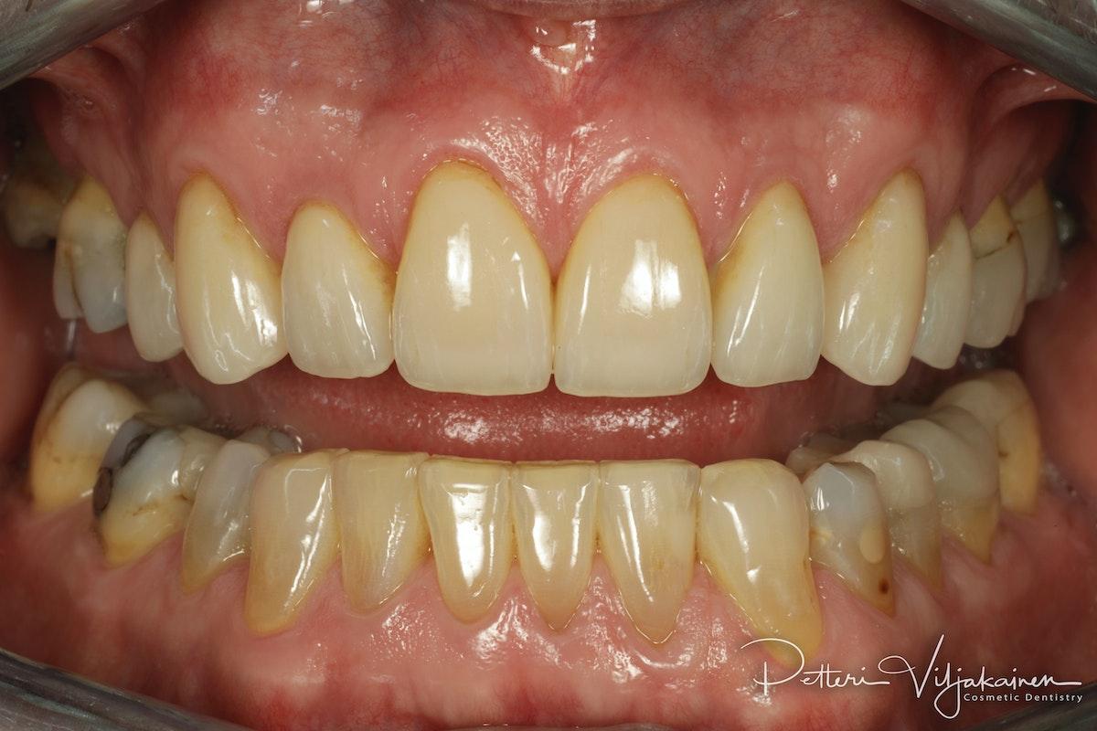 Invisalign oikomishoito jälkeen. Kahdeksaan yläetuhampaaseen tehtiin keraamiset kuoret eli hammaslaminaatit.