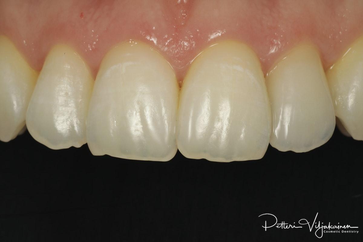Reunimmaisessa yläetuhampaassa Invisalign oikomisen jälkeen yksittäinen keraaminen kuori eli hammaslaminaatti.