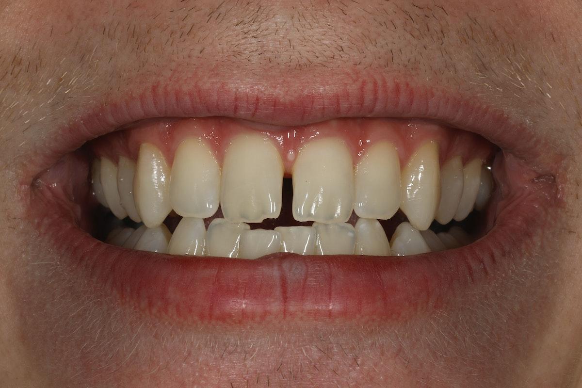 Esteettinen hammashoito ennen