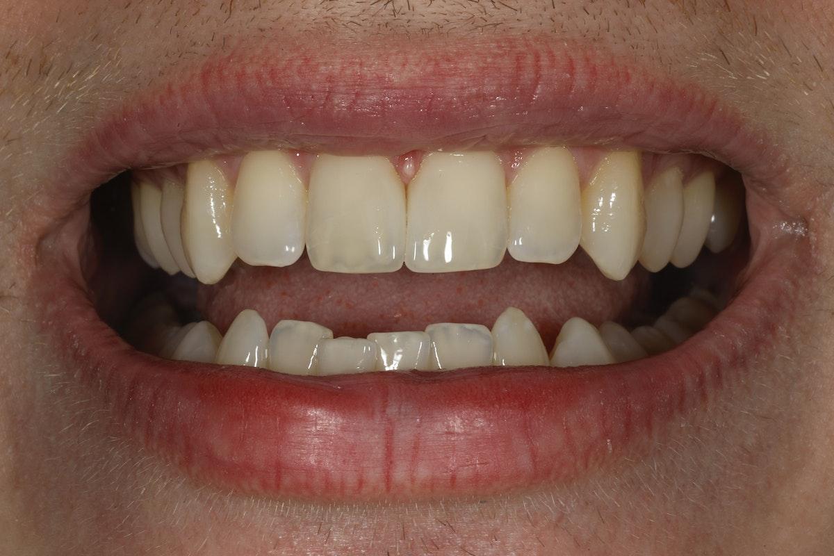 Esteettinen hammashoito jälkeen. Etuhampaiden väli eli diasteema suljettiin yhdistelmämuovitäytteillä kerrostustekniikalla toteutettuna.