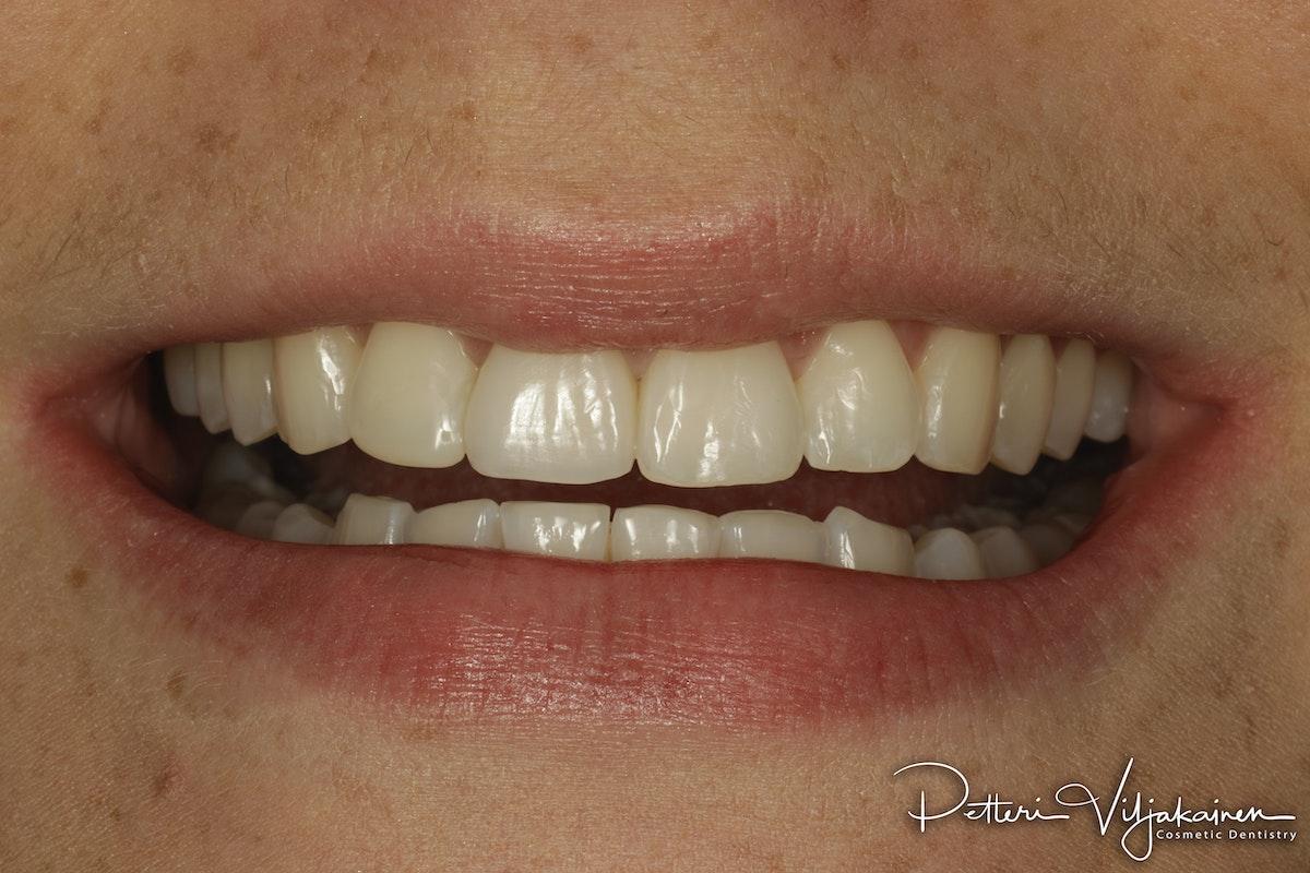 Invisalign oikomishoito jälkeen. Yksittäinen keraaminen kuori eli hammaslaminaatti tapaturmaisesti juurihoidettuun etuhampaaseen.