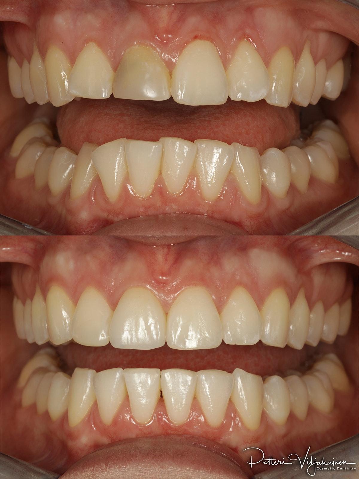 Esteettinen hammashoito ennen jälkeen. Yksittäinen keraaminen kuori eli hammaslaminaatti etuhampaassa.