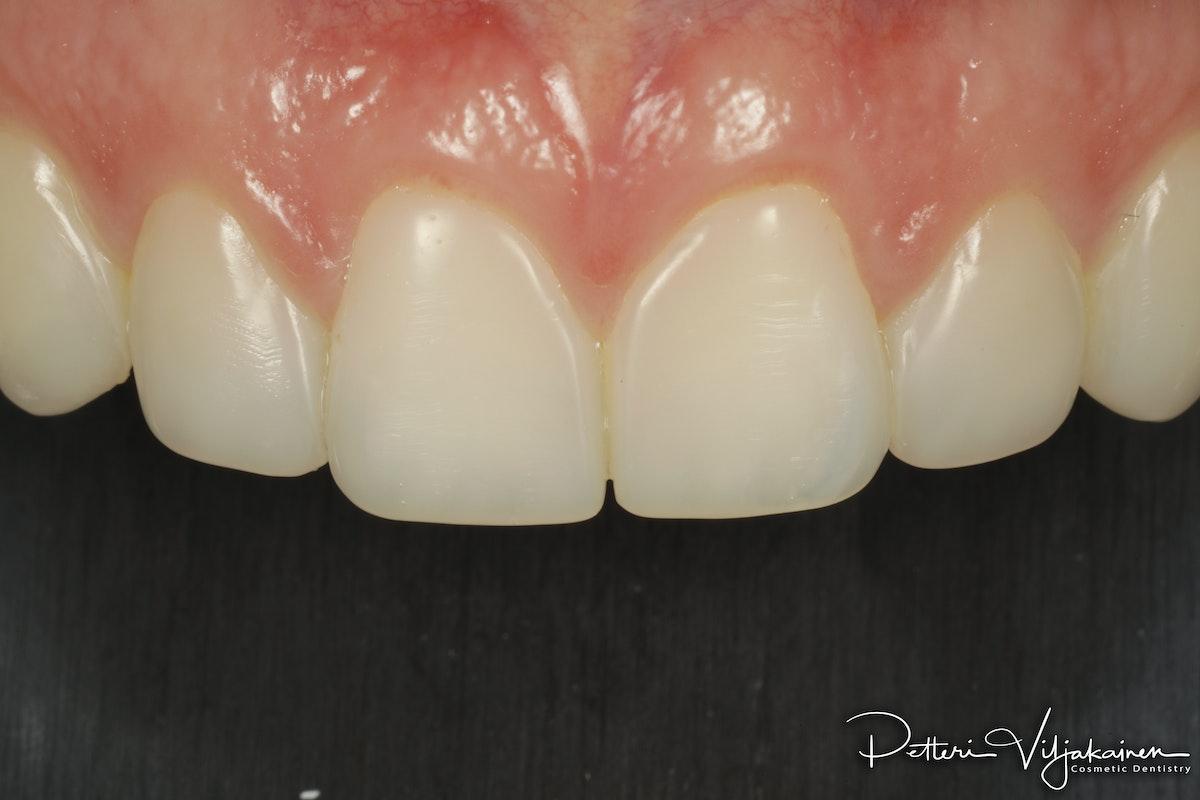 Muovilaminaatit. Edulliset laminaatit hampaisiin yhdistelmämuovista kerrostustekniikalla.