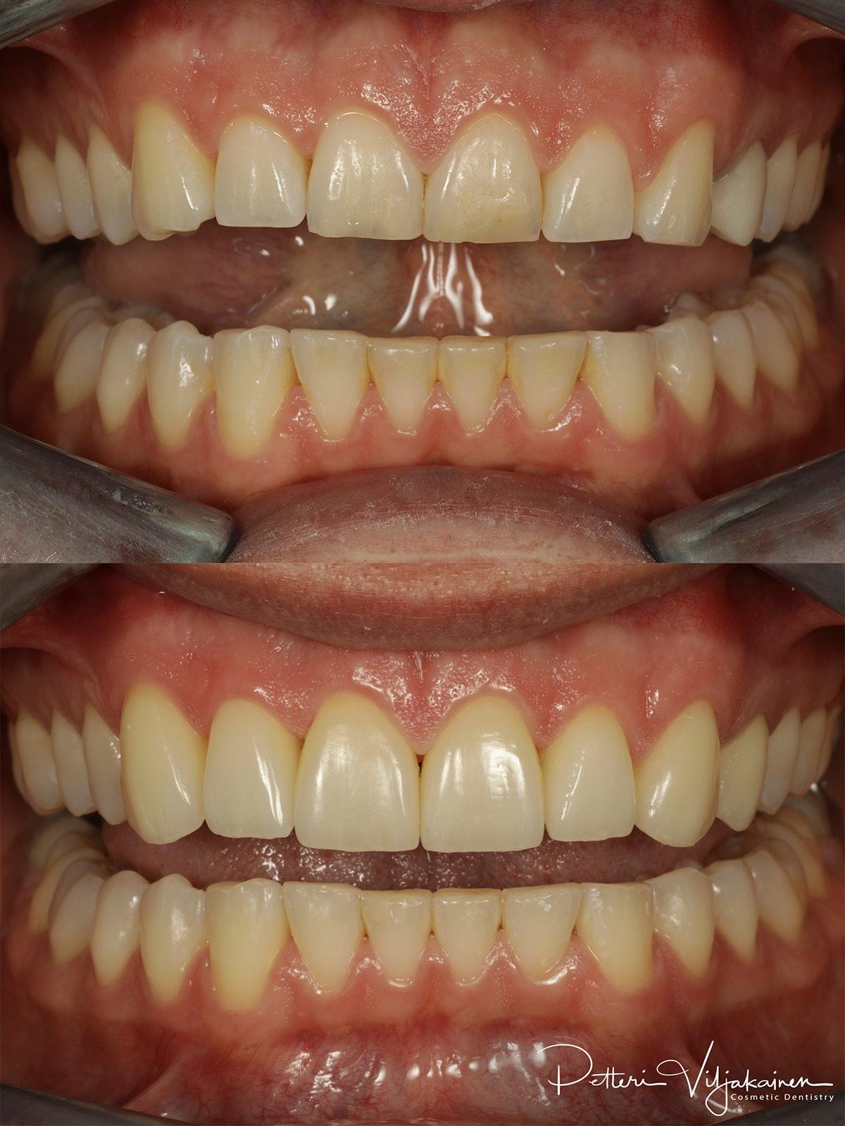 Esteettinen hammashoito ennen jälkeen. Keraamiset kuoret eli hammaslaminaatit reunimmaisissa yläetuhampaissa.
