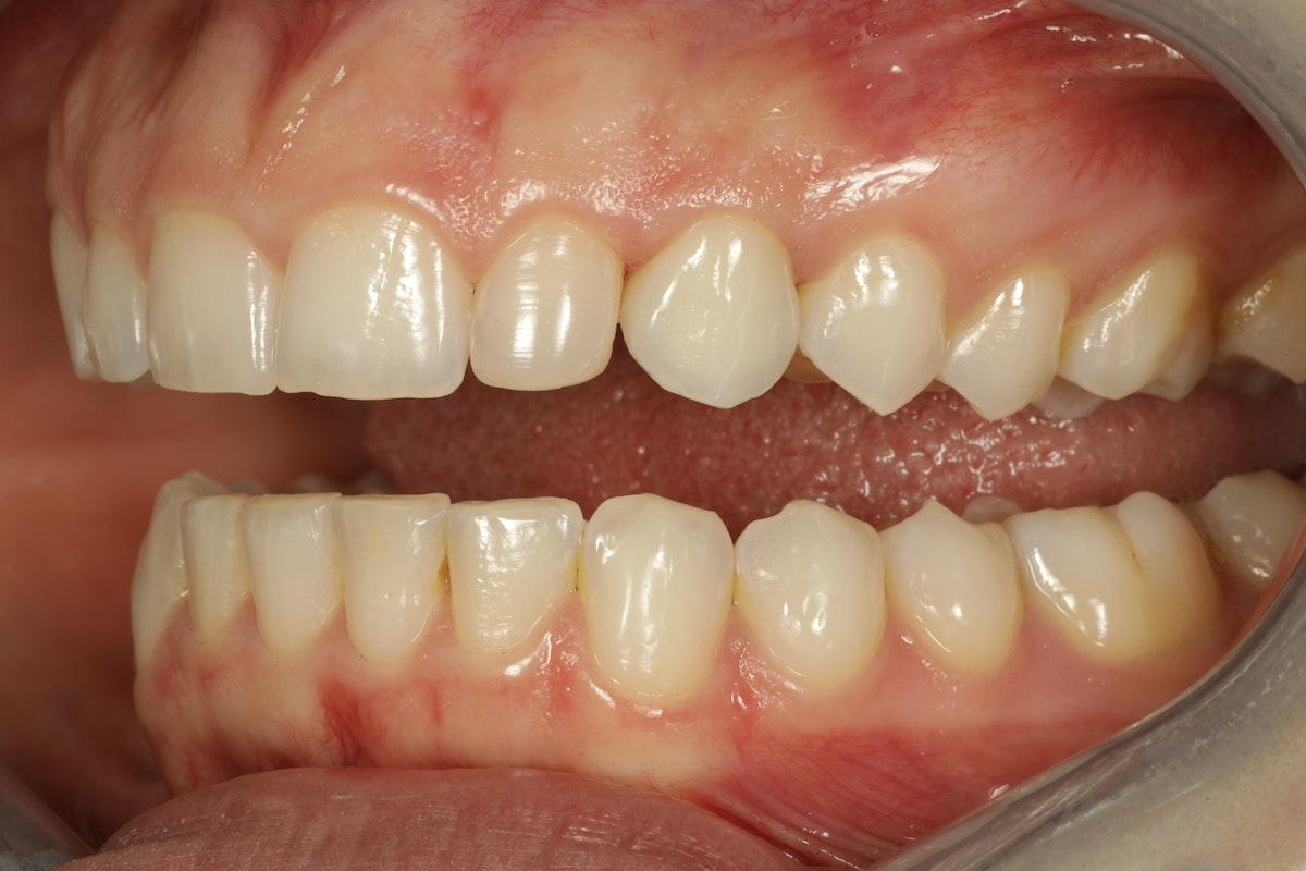 Esteettinen hammashoito Helsinki hampaat ennen