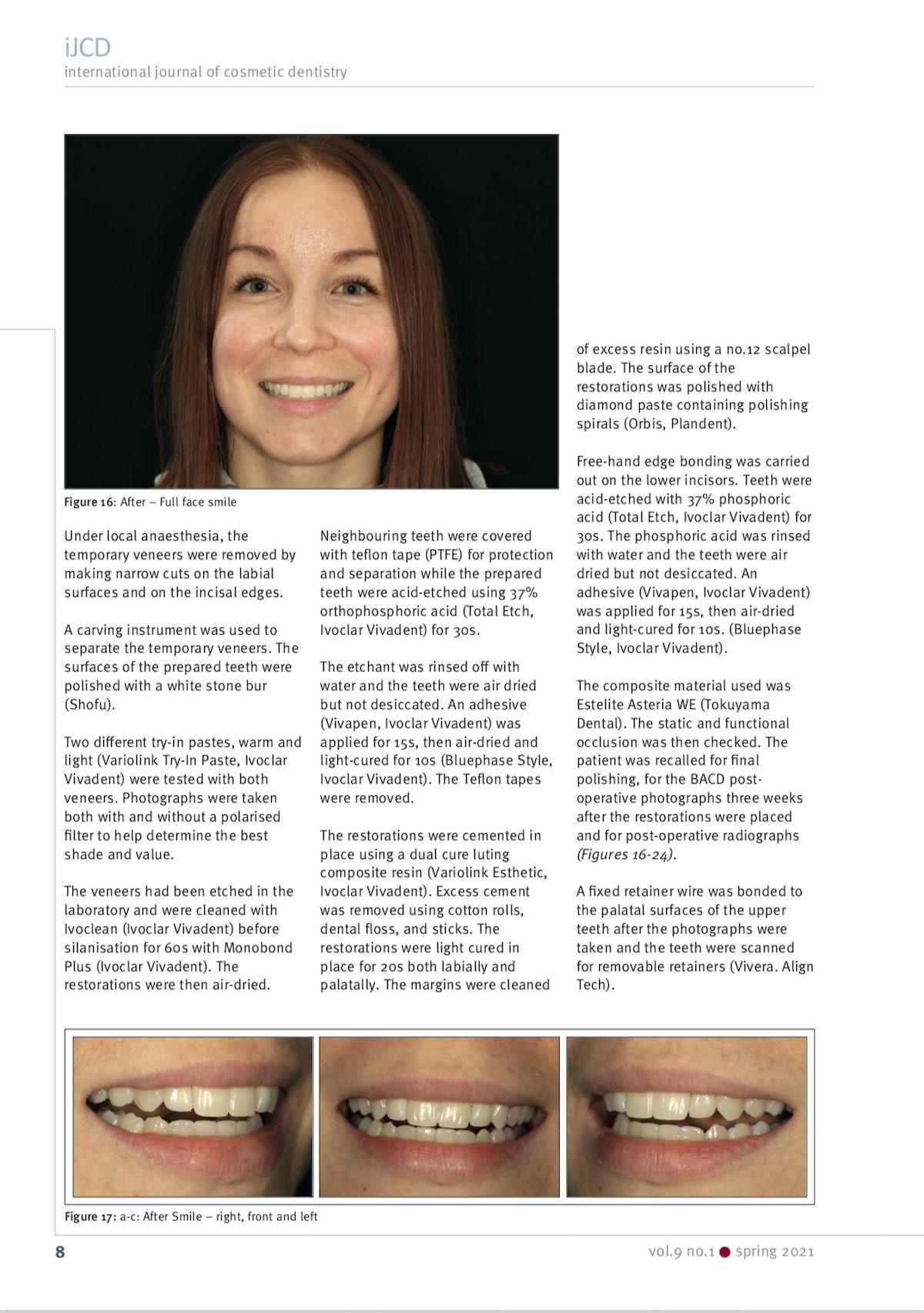 Esteettinen hammashoito Helsinki hampaat jälkeen